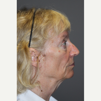 65-74 year old woman treated with Facelift before 3286757