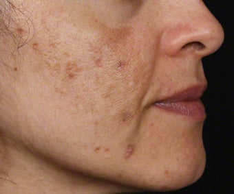 Cosmelan for Melasma and Pigmented Acne Scars before 539875