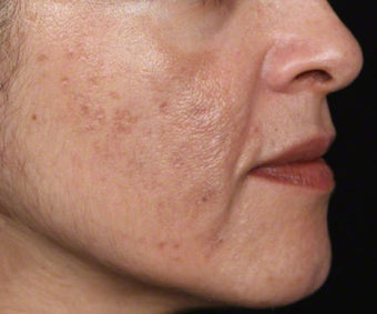 Cosmelan for Melasma and Pigmented Acne Scars after 539875