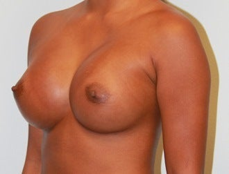 High profile 650cc silicone implants after 1017501