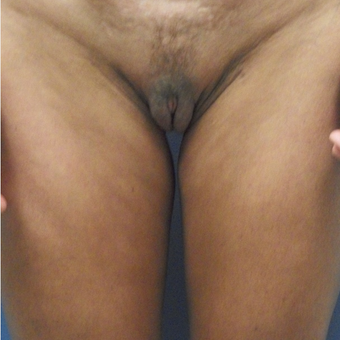 35-44 year old woman treated with Labiaplasty after 3176845