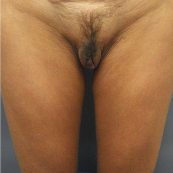 35-44 year old woman treated with Labiaplasty before 3176845