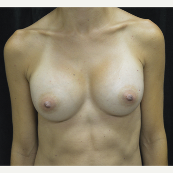 35-44 year old woman treated with Breast Augmentation after 3423884