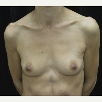 35-44 year old woman treated with Breast Augmentation before 3423884