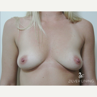 25-34 year old woman treated with Breast Implants before 2496644