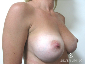25-34 year old woman treated with Breast Implants 2496644