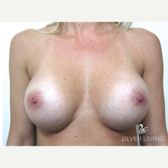 25-34 year old woman treated with Breast Implants after 2496644