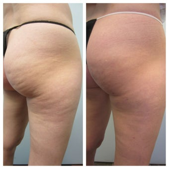 Cellulaze Laser  before 1096421