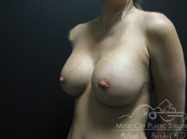 29 Year Old Mother of Two Breast Implants Before and After after 1395285