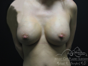 29 Year Old Mother of Two Breast Implants Before and After 1395285