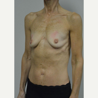 55-64 year old woman treated with Breast Implants before 3055547