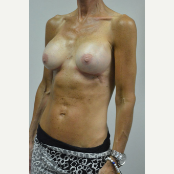 55-64 year old woman treated with Breast Implants after 3055547