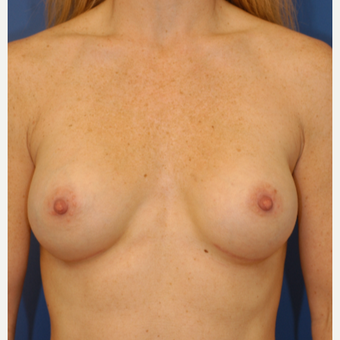 25-34 year old woman treated with Breast Augmentation after 3619044