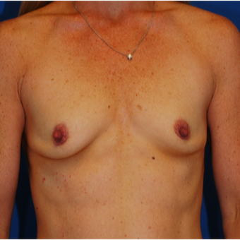 25-34 year old woman treated with Breast Augmentation before 3619044