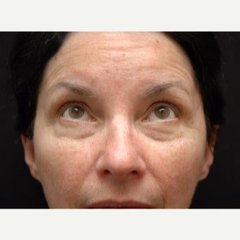 55-64 year old woman treated with Eye Bags Treatment before 2178320