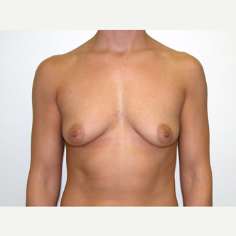 25-34 year old woman treated with Breast Augmentation before 3378482