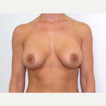 25-34 year old woman treated with Breast Augmentation after 3378482