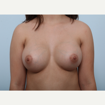 Breast Augmentation after 3425283