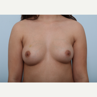 Breast Augmentation before 3425283