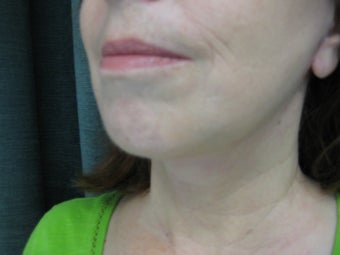 Female treated for facial laxity 1110294