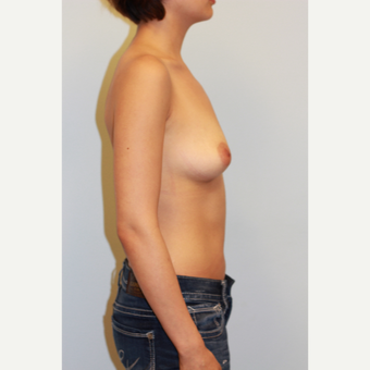25-34 year old woman treated with Breast Implants before 3027380