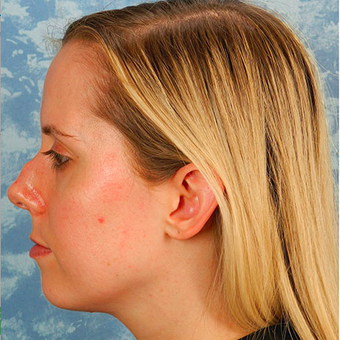 Rhinoplasty before 3124802