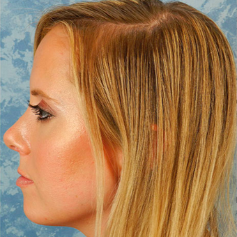 Rhinoplasty after 3124802