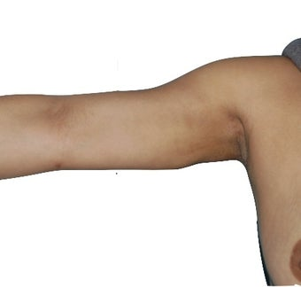 6 Month Post Operative Arm Liposuction 1100175