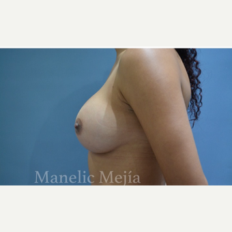 25-34 year old woman treated with Breast Augmentation after 3647404