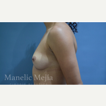 25-34 year old woman treated with Breast Augmentation before 3647404