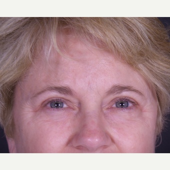 55-64 year old woman treated with Eyelid Surgery after 3059449
