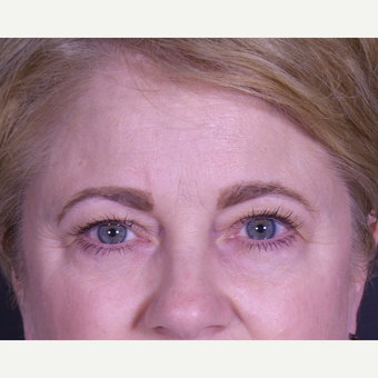 55-64 year old woman treated with Eyelid Surgery before 3059449