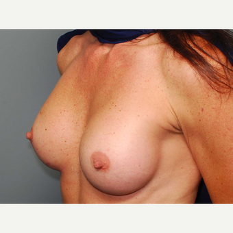 38 y/o Inframammary Sub Muscular Breast Augmentation after 3066102