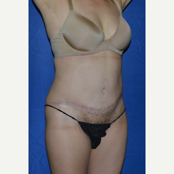45-54 year old woman treated with No-Drain Tummy Tuck after 3655855