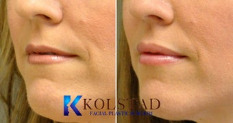 Lip Augmentation 671907