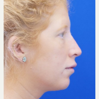 25-34 year old woman treated with Non Surgical Nose Job after 3711527