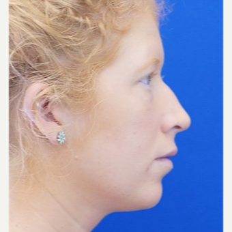 25-34 year old woman treated with Non Surgical Nose Job before 3711527
