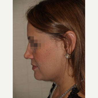 45-54 year old woman treated with Revision Rhinoplasty 1853488