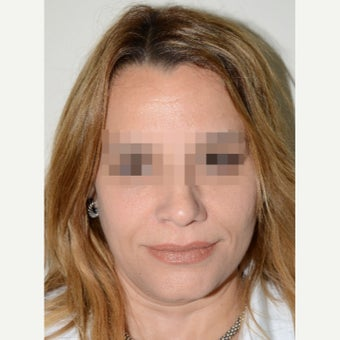 45-54 year old woman treated with Revision Rhinoplasty after 1853488