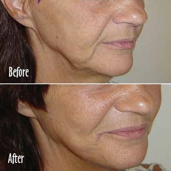 Threadlift of jowls and chin before 6818