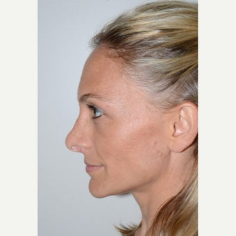 35-44 year old woman treated with Revision Rhinoplasty 1853550