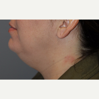 35-44 year old woman treated with Kybella before 3147392