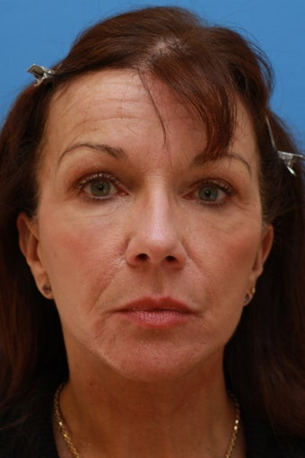 58 Year Old Lady After Revision Facelift after 626857