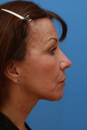 58 Year Old Lady After Revision Facelift 626857