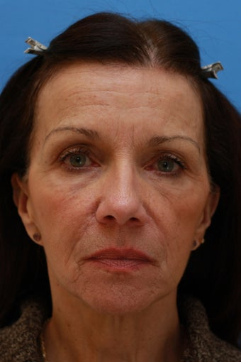 58 Year Old Lady After Revision Facelift before 626857