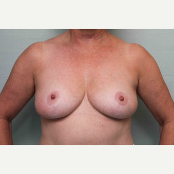 45-54 year old woman treated with Breast Reduction after 3797290