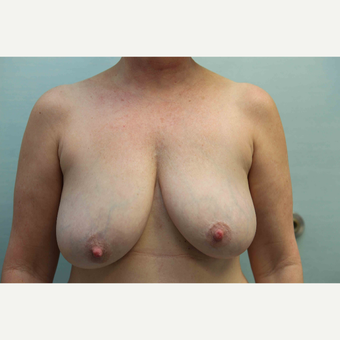 45-54 year old woman treated with Breast Reduction before 3797290