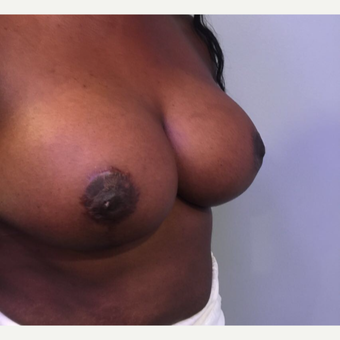 25-34 year old woman treated with Breast Reduction after 3749882