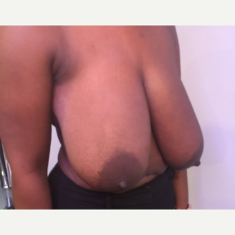 25-34 year old woman treated with Breast Reduction before 3749882
