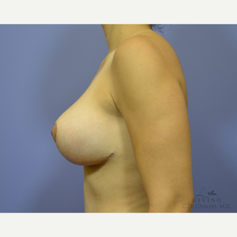 25-34 year old woman treated with Breast Lift with Implants after 3419885